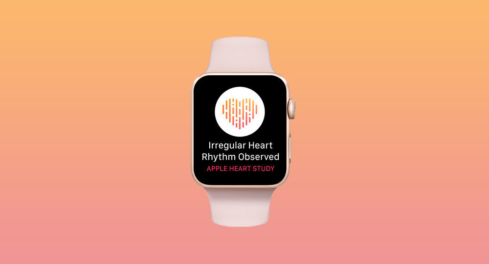 Часы Apple Watch с программой Heart Study